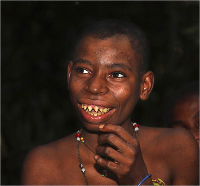 Exuberant and joyful young Ba'Aka girl with filed teeth. (Image: Willem Daffue)