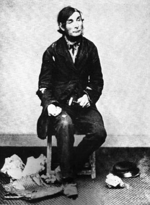 Picture of Edward Simpson aka Flint Jack, born 1815. (Public Domain)