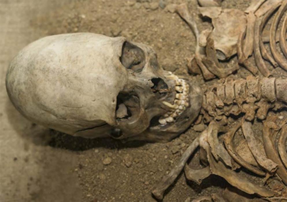 An elongated skull ( gerasimov174 / Adobe Stock)
