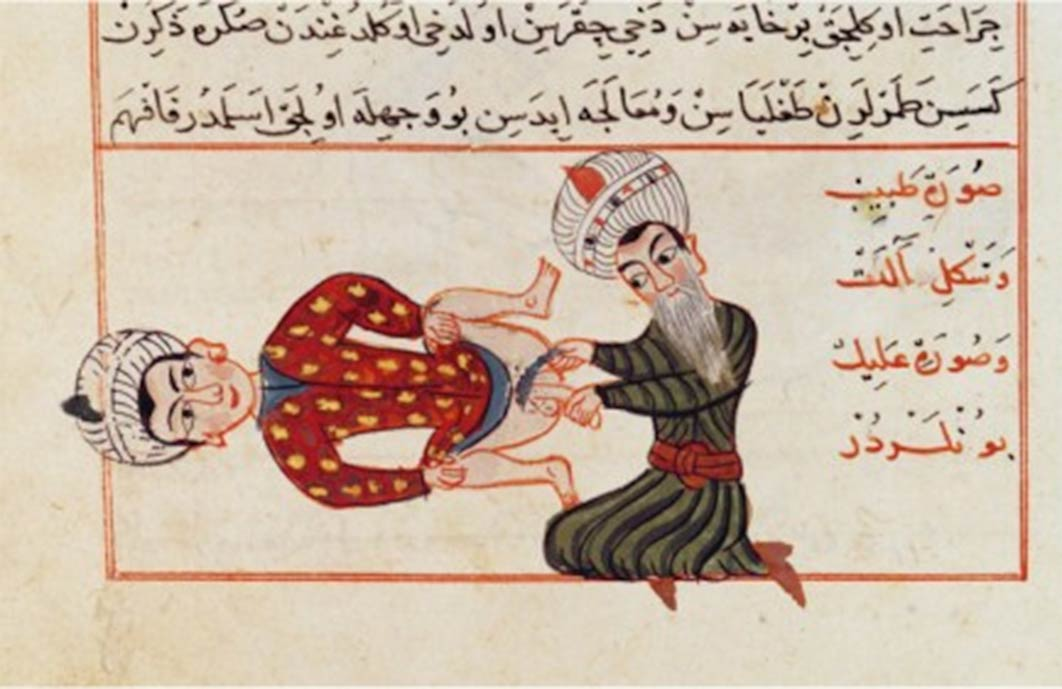 A medical illustration by Sharaf ad-Din depicting an operation for castration. (c. 1466) (Public Domain)